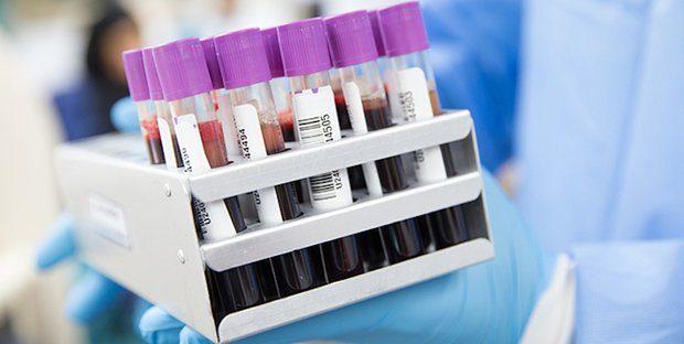 "Test sierologici al Centro medico ""Lisa"""